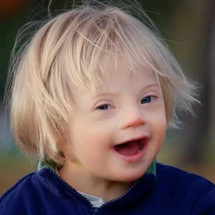 Центр реабилитации детей с синдромом дауна